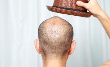 Трихопигментация волос (татуаж скальпа)