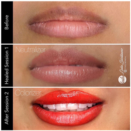 EvenFlo Lip Сorrector